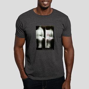 Backeotomy - Dark T-Shirt