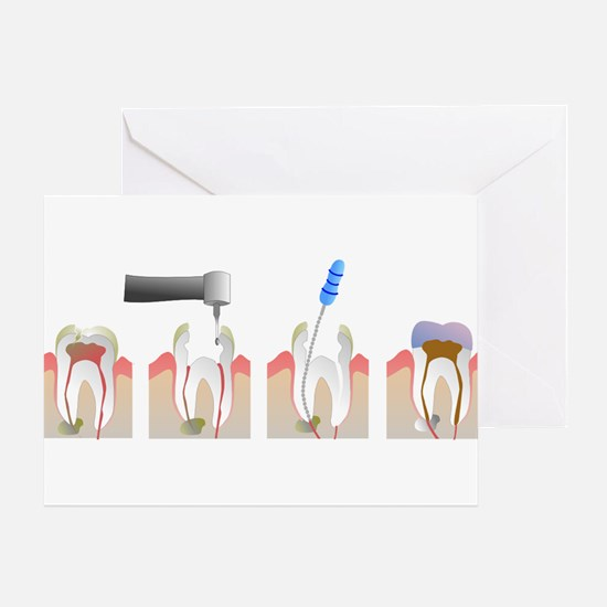 Root Canal Greeting Card