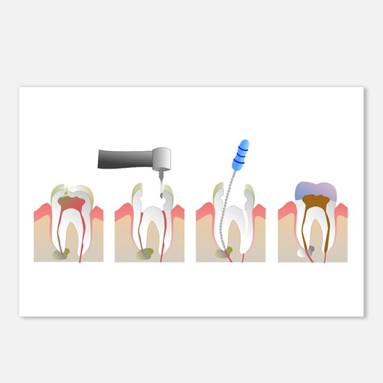 Root Canal Postcards (Package of 8)