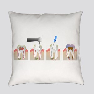 Root Canal Everyday Pillow