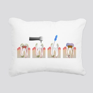 Root Canal Rectangular Canvas Pillow