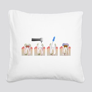 Root Canal Square Canvas Pillow