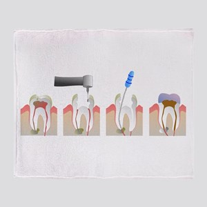 Root Canal Throw Blanket
