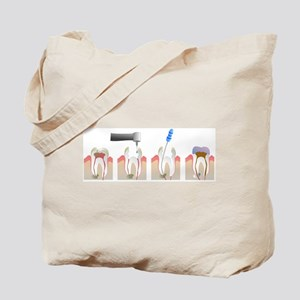 Root Canal Tote Bag