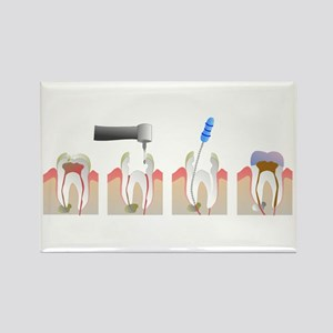 Root Canal Rectangle Magnet
