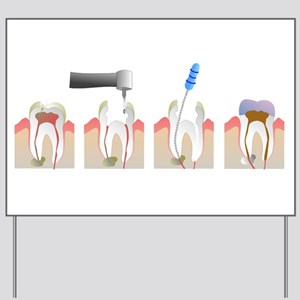 Root Canal Yard Sign