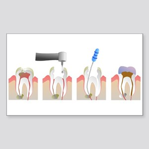 Root Canal Sticker (Rectangle)