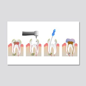 Root Canal 20x12 Wall Decal