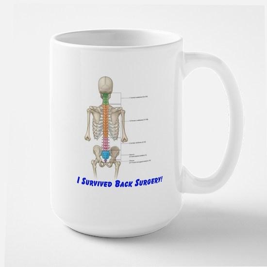 I Survived Back Surgery! Large Mug