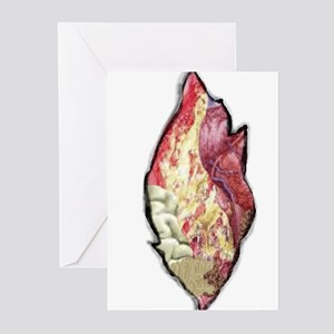 Stationery - sgusting guts Greeting Cards (Package