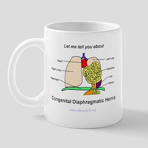 CDH Anatomy Lesson Mug