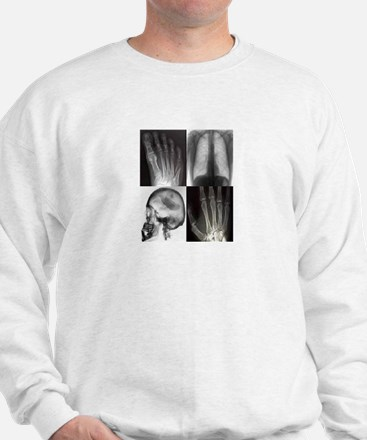 Cool X ray tech Sweatshirt