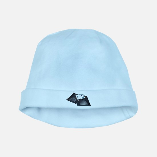 XrayMedicalResearch061209.png Baby Hat