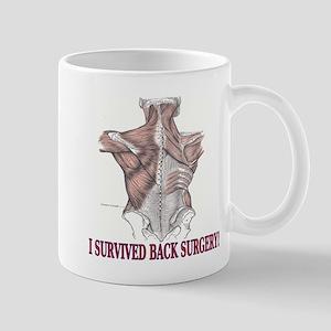 2-Back Surgery 2 Mugs