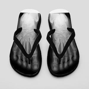 X-Ray Feet! Flip Flops
