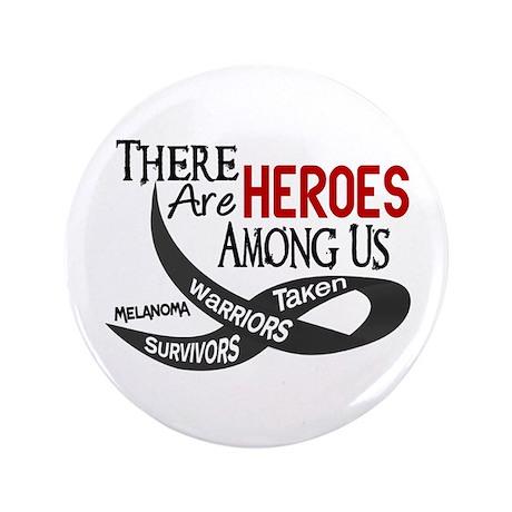 "Heroes Among Us MELANOMA 3.5"" Button"