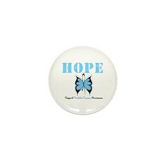 HopeButterfly ProstateCancer Mini Button (100 pack