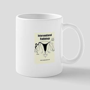 Hysterosalpingogram Mug