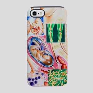 Pregnancy vitamin deficiencies iPhone 7 Tough Case