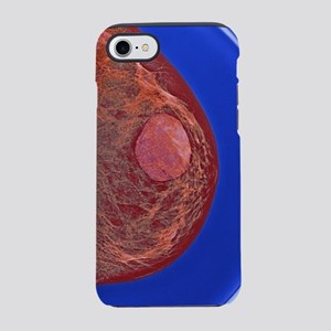 Breast cyst, X-ray iPhone 7 Tough Case
