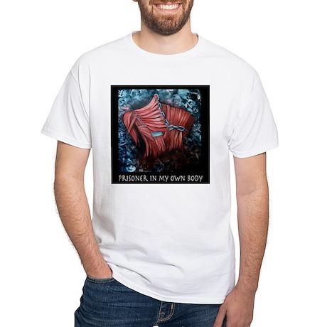 Prisoner In My Own Body White T-Shirt
