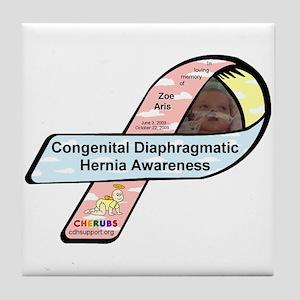 Zoe Aris CDH Awareness Ribbon Tile Coaster
