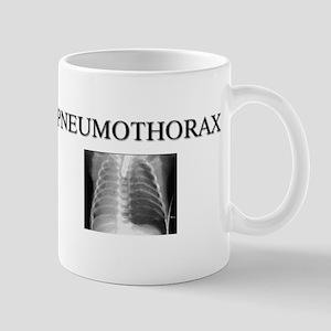 Pneumothorax Mug