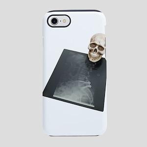 BonesXray061209 iPhone 7 Tough Case