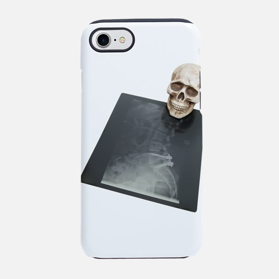 BonesXray061209.png iPhone 7 Tough Case