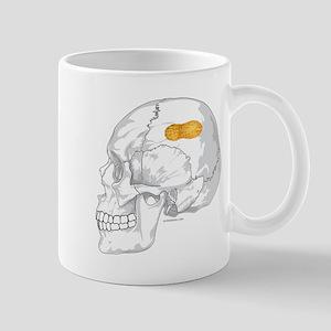 PEANUT BRAIN Mug