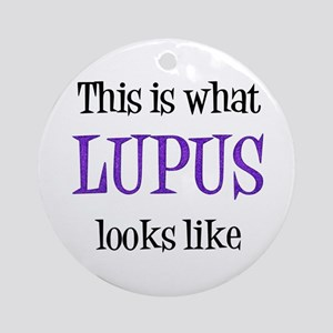 This is what Lupus looks like Ornament (Round)