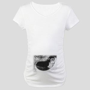 Baby Sonogram Maternity T-Shirt