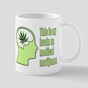 This is my brain on medical marijuana Mug