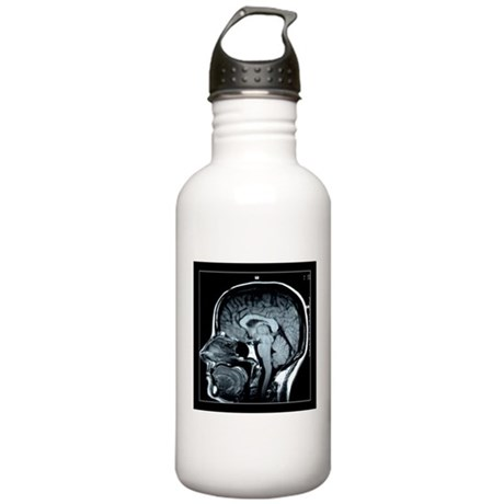 Get your Head Examined XRay Stainless Water Bottle