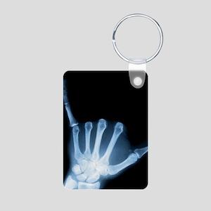 Shaka Sign X-Ray (Hang Loose) Aluminum Photo Keych