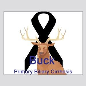 Primary Biliary Cirrhosis Small Poster