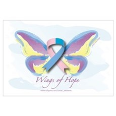 Male Breast Cancer Wings of H Poster