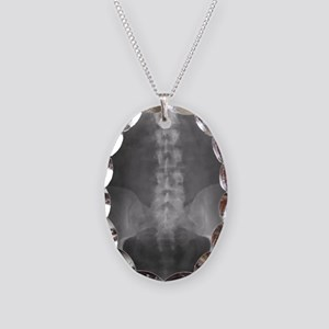 Digital X-Ray Art Necklace Oval Charm