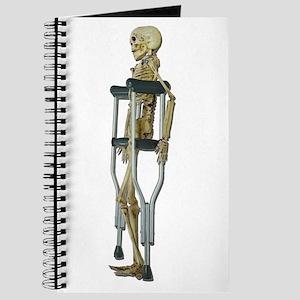 Skeleton on Crutches Journal