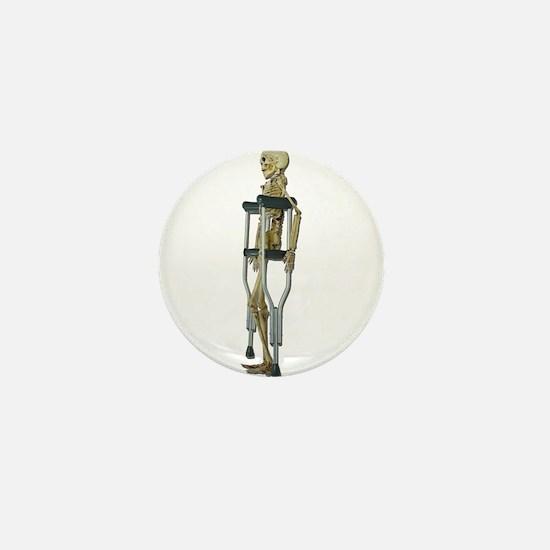 Skeleton on Crutches Mini Button