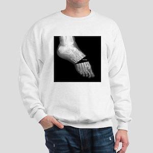 Broken Foot 2 Sweatshirt