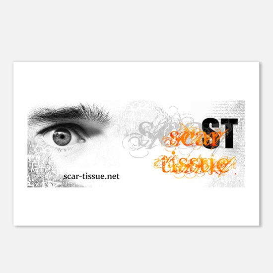 Scar Tissue Postcards (Package of 8)