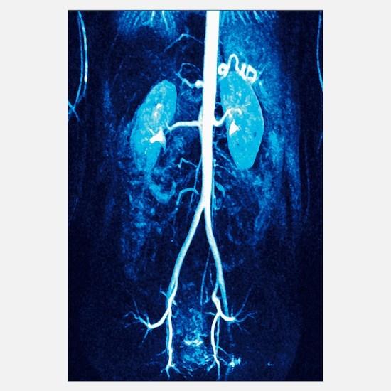 Normal renal arteries, MRA scan