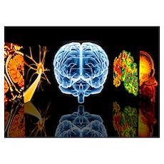Neurology Poster