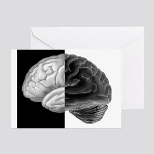 Brain Contrast Greeting Card