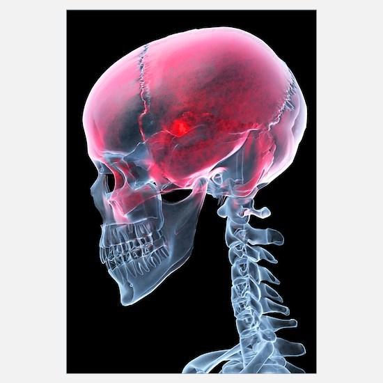 Headache, X-ray artwork