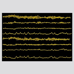 Normal EEG read out of the brains alpha waves