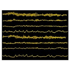 Normal EEG read out of the brains alpha waves Framed Print