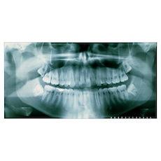 Panoramic dental X-ray of impacted wisdom teeth Poster