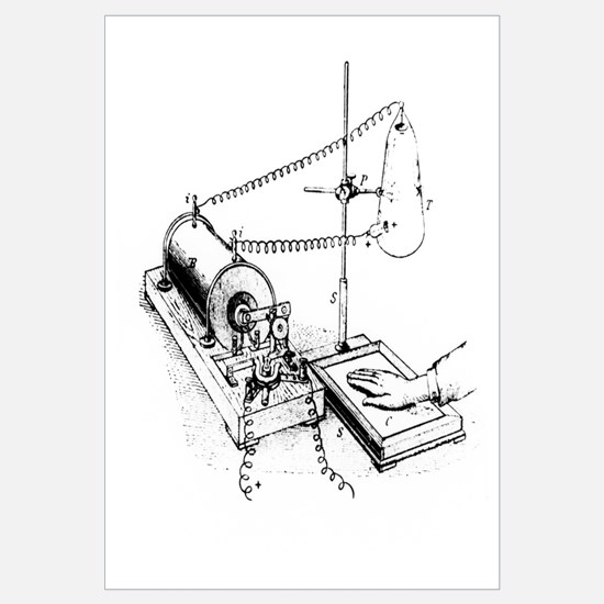 Art of Roentgen's X-ray apparatus for imaging hand